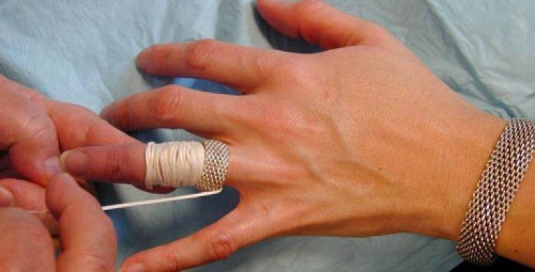 Как снять кольцо с опухшего пальца в  84