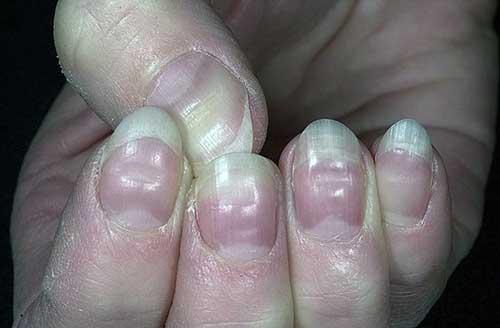 Неровные ногти на больших пальцах рук