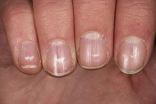 Ногти на руках стали волнистыми