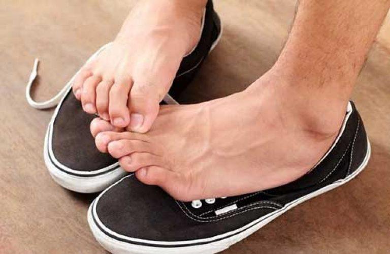 Что делать с обувью при грибке стопы