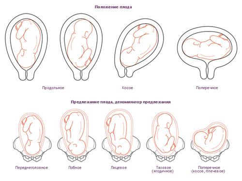 Правильное расположение плода при беременности 72