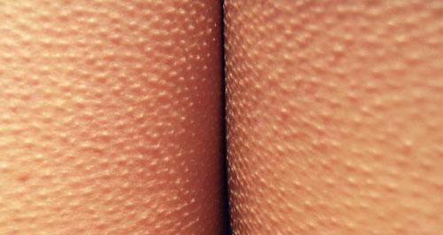 Сыпь по всему телу в виде гусиной кожи thumbnail