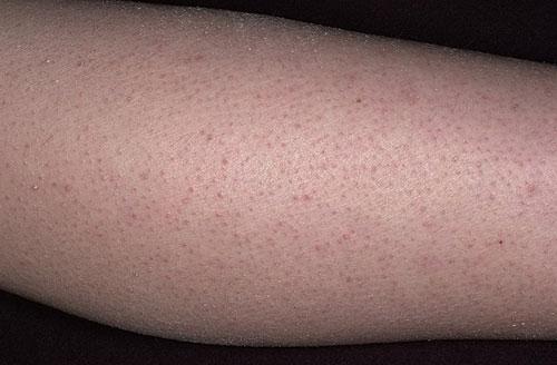 аллергия на руках и ногах лечение