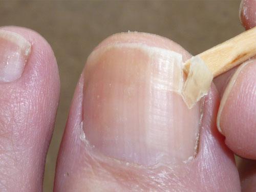 Ноготь отходит от кожи пальца ног и рук