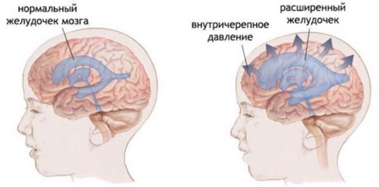 Внутричерепное давление у ребенка - Дети Mail.ru