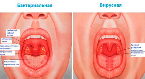 Гнойная ангина у взрослых симптомы и лечение, фото 94