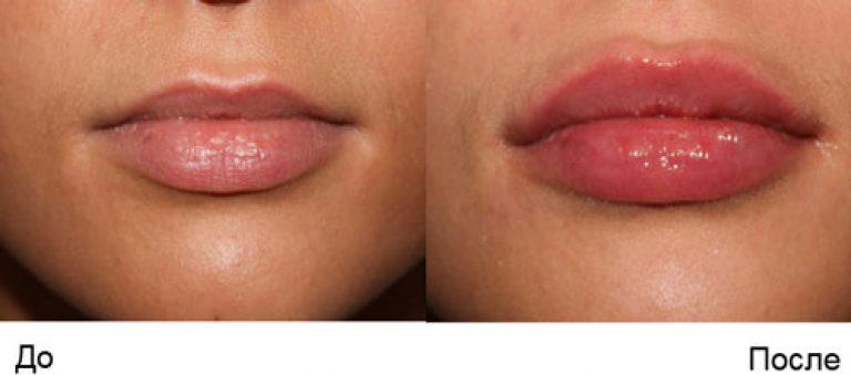Увеличение губ гиалуроновой кислотой пермь