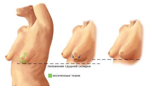 Обвислые женские груди — img 3