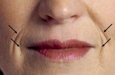 Кисетные морщины над верхней губой: причины появления и как их убрать в домашних условиях