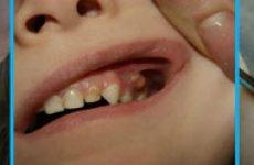 Свищ на десне молочного зуба у ребёнка: причины и лечение в домашних условиях?