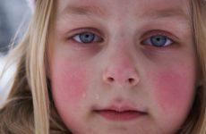 Причины купероза на лице, препараты, удаление и лечение в домашних условиях самостоятельно