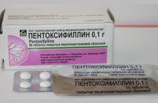 Дешевые аналоги и заменители препарата пентоксифиллин: список с ценами