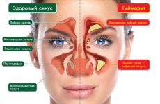 Симптомы и признаки гайморита у взрослых