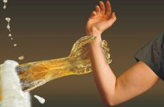 Симптомы и признаки пивного алкоголизма у мужчин и женщин