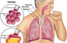 Мокрота в горле без кашля: причины появления и как ее вывести?
