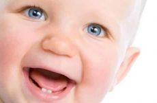 Сколько молочных зубов у детей должно быть по годам?