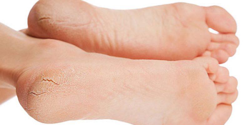 Трещины на пятках: варианты лечения в домашних условиях