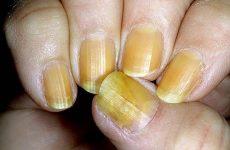 Частые болезни ногтей на ногах и руках и с чем они связаны?