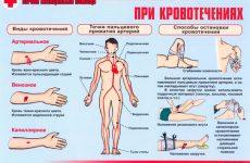 Оказание первой медицинской помощи при артериальном, венозном и носовом кровотечении