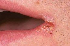 Причины заедов в уголках рта у взрослых и детей