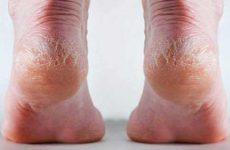 Что делать если обувь натирает пятки сзади: советы